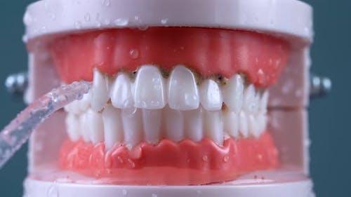 Teeth Cleaning Water Pressure 03
