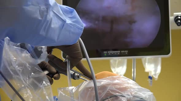 Thumbnail for Arthroscopy and Knee Ligament Surgery 14