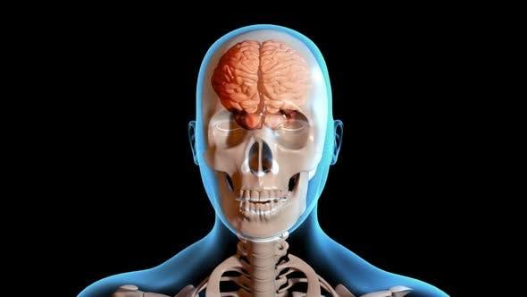 Concussion   Traumatic Brain Injury