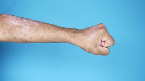 Burns on Man Hand on Blue Background