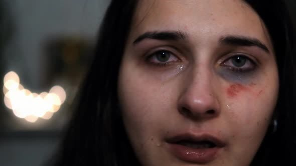 A Young Woman with an Injury on Her Face Is Crying. Consequences of Violence