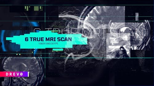 6 in 1 True Mri Scan/ Head X Ray/MRI/ SCULL/ Roentgen/ Face ID/ Medical HUD/ Brain/ Technology