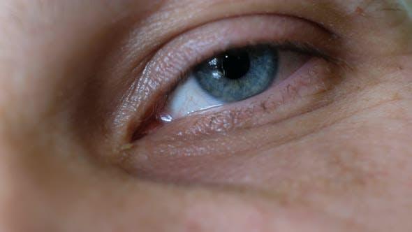 Krankheitliches Auge