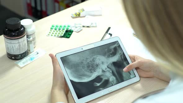 Thumbnail for Doctor Controlling X-Ray on Tablet Computer
