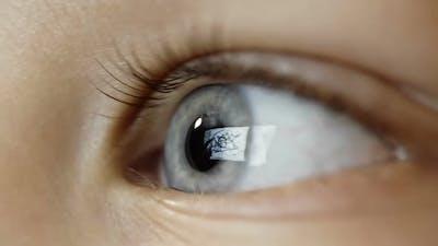 Kid's Eye