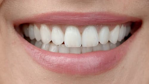 Smile of a Charming Girl with Perfect White Teeth Close Up. Perfect White Teeth and a Smile