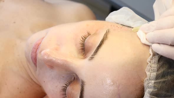 Anti-aging Skin Procedure: Professional Cosmetologist Makes Multiple Facial Injections Leaving