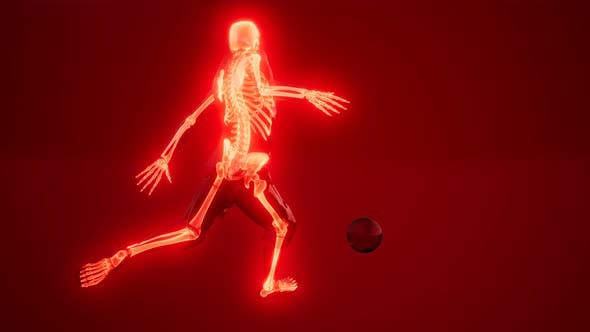 Thumbnail for Soccer Player with Visible Bones Medical Scan