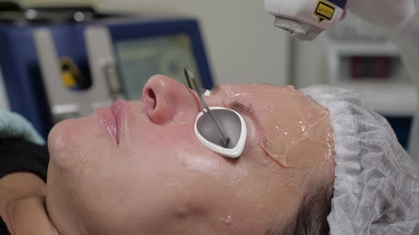 Wrinkle Removal with Laser Machine