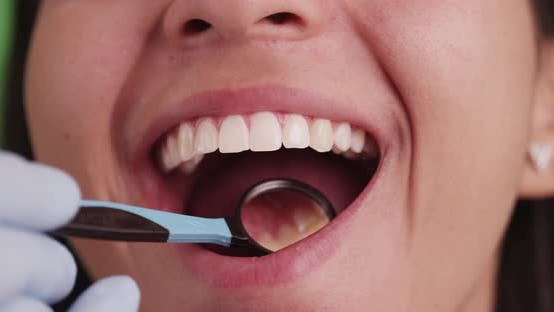 Thumbnail for Hispanic girl smiling while getting her teeth checked on green screen