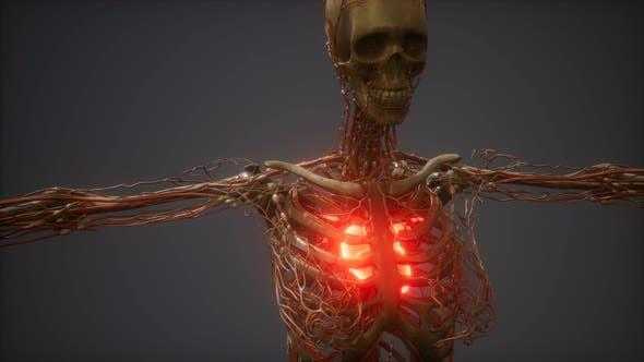 CG animation d'un coeur humain malade