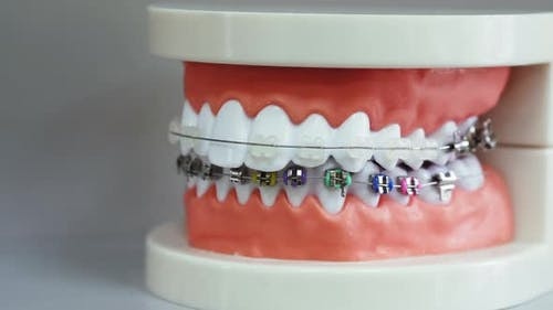 Human Jaw Model with Different Types of Braces