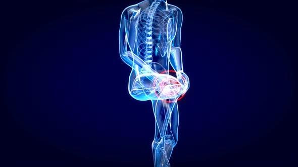 Anatomy shot of an injured knee
