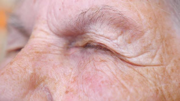 Thumbnail for Detail View on Closed Eyes of Old Woman. Close Up of Wrinkled Female Face. Granny Opening Her Eyes