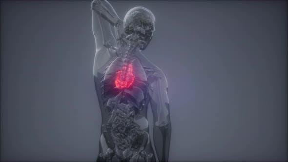 Thumbnail for Human Heart Radiology Exam