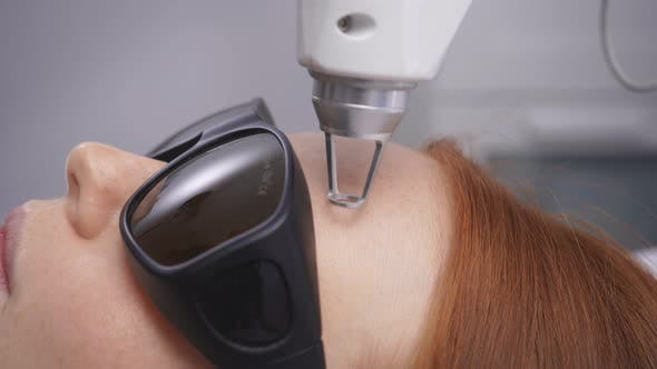 Cosmetic Procedure in a Modern Beauty Salon. Close-up of Laser Skin Resurfacing