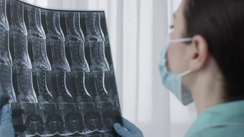 Female Doctor Examining Mri Film Scan Of Lumbar Spines Of A Patient With Chronic Back Pain