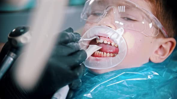 Thumbnail for A Little Boy with Damaged Baby Teeth Having a Treatment in the Dentistry with an Opening Mouth Guard
