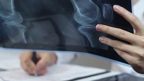 Arzt und X Strahl von Knochen