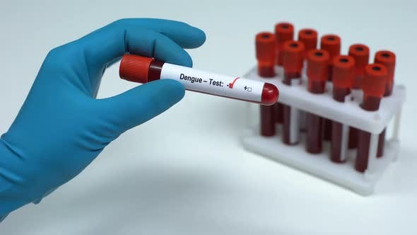 Thumbnail for Negative Dengue Test, Doctor Showing Blood Sample, Lab Research, Health Check-Up
