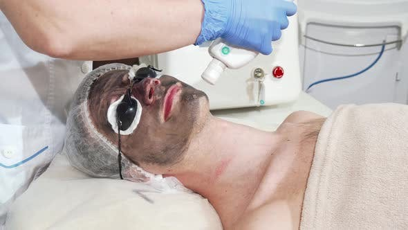 Thumbnail for Man Getting Facial Carbon Peeling at Beauty Clinic By Professional Cosmetologist