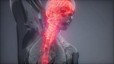 Head Pain Headache - Male Hurt Backbone