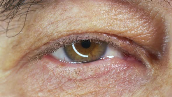 Thumbnail for The Eye of an Elderly Man Close Up