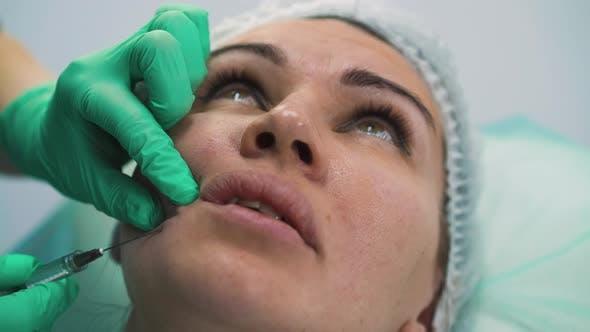 Thumbnail for Frau unterzieht sich Anti-Aging-Gesichtsfüller Injektion in der Klinik
