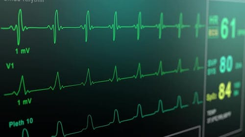 Heart Rate Monitor in Hospital Theater. Medical Vital Signs Monitor Instrument in a Hospital on