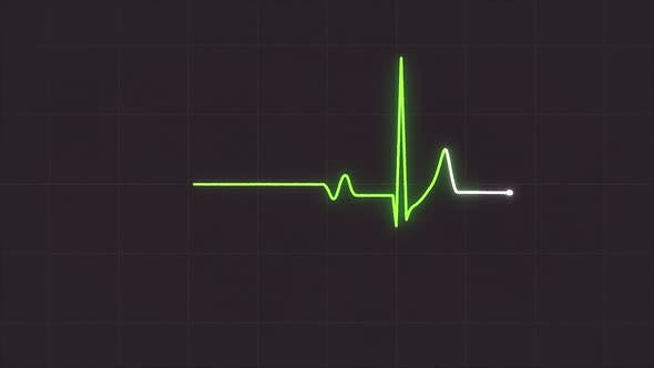 Abstract EKG Monitor showing heart beat on grey background