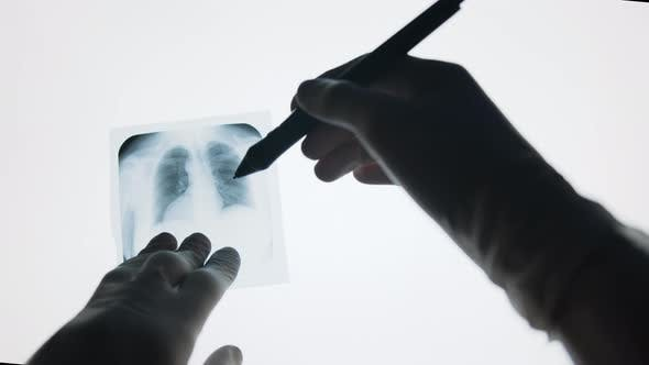 Thumbnail for Top view of doctors hands examining lungs x-ray on white background. Medicine Concept