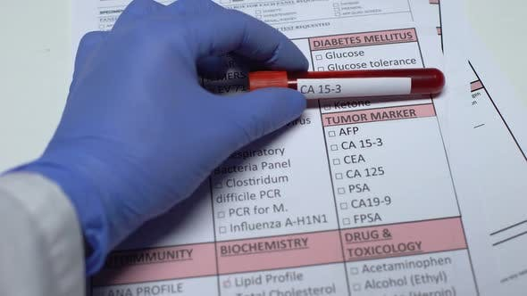 Thumbnail for CA 15-3, Doctor Checking Disease in Lab Blank, Showing Blood Sample in Tube