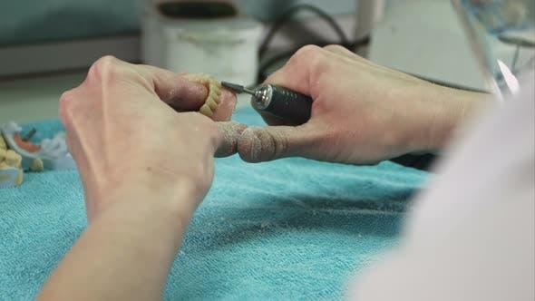 Thumbnail for Dental Technician Making Deture Prothese