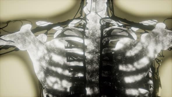 Thumbnail for Human Skeleton Bones Scan Glowing