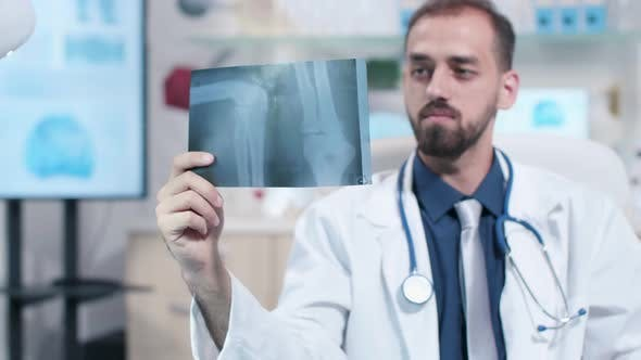 Thumbnail for Close Up of Doctor Looking at X Ray Scan of a Leg