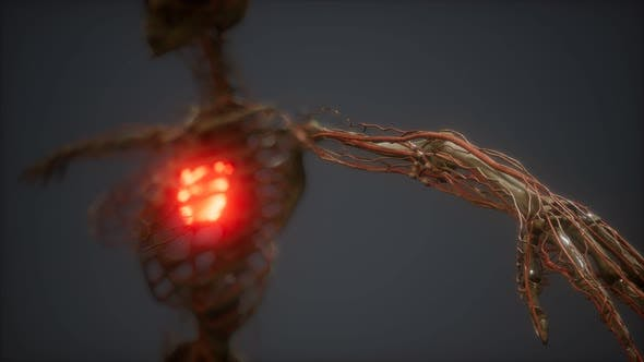 CG Animation Of A Sick Human Heart