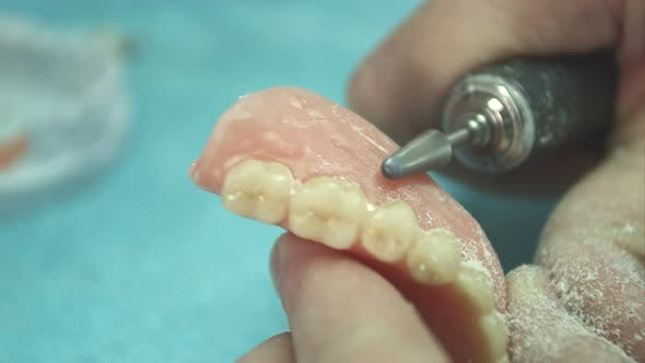 Thumbnail for Denturist Working on Deture Prothese