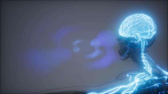 Thumbnail for Human Brain Radiology Exam
