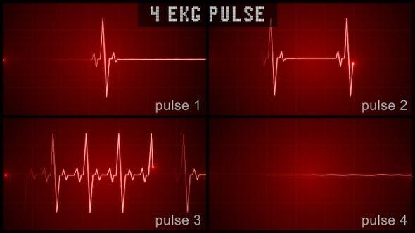Thumbnail for EKG Pulse Set