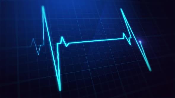 Thumbnail for Digital EKG Pulse Screen