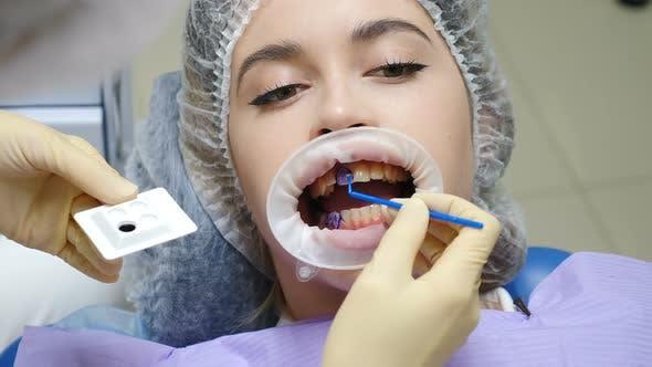 Dentistry Practice. Dental Hygiene Procedure. Professional Teeth Scaling. Female Patient in Dental