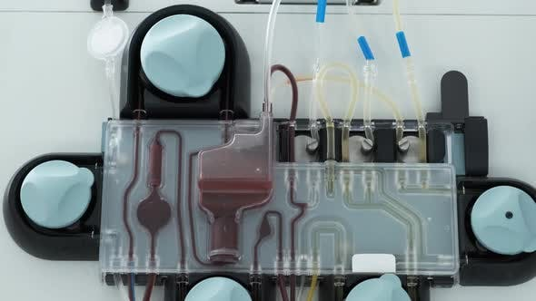 Thumbnail for Apparatus for Plasmapheresis Close Up. Removal, Treatment, Return or Exchange of Blood Plasma or