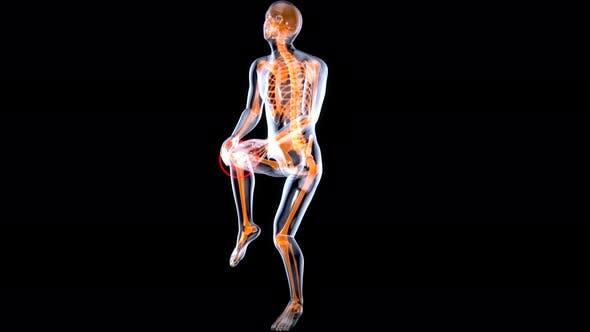 Thumbnail for Anatomy shot of an injured knee