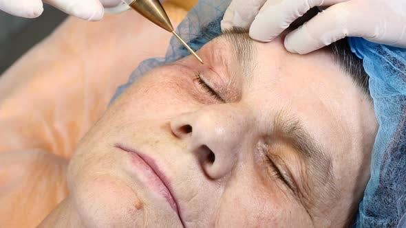Thumbnail for In Beauty Clinic. Senior Woman Gets Facial Skincare Treatment. Eyelid Lifting. Age-related Changes