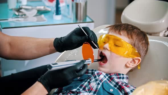 Thumbnail for A Little Boy in Protective Glasses Having His Teeth Done - Putting the Photopolymer Lamp in the