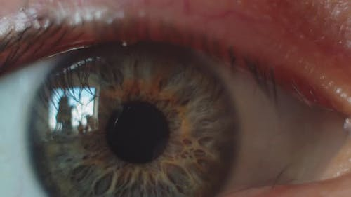 Perfect Brown Eye Macro in a Sterile Environment and Perfect Vision