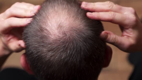 Thumbnail for Man with Hair Loss Problems Close-up